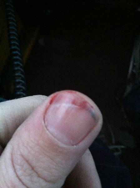 "I will never make light of somebody ""breaking a nail"" again. Ouch"