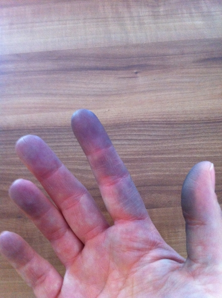 so sieht das aus #Finger